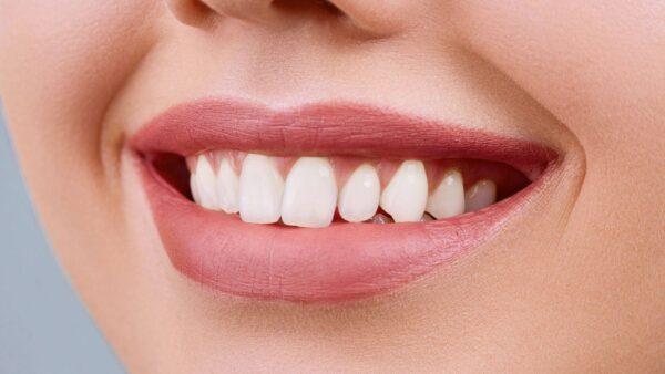 Albire dentara Bucuresti – cum se realizeaza